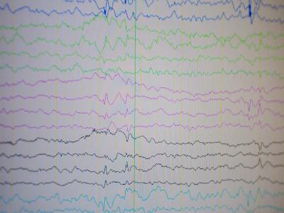 黑龙江中亚医院癫痫精准诊断的重要手段——长程视频脑电图监测的应用