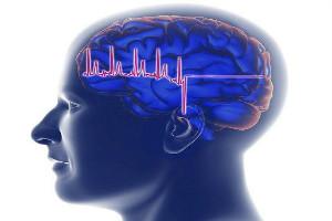 癫痫病发作时早期症状都有哪些呢