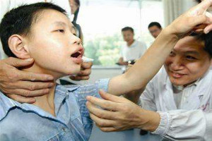 儿童突然得癫痫病的原因是什么
